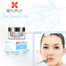 Best result real plus anti acne cream remove scars