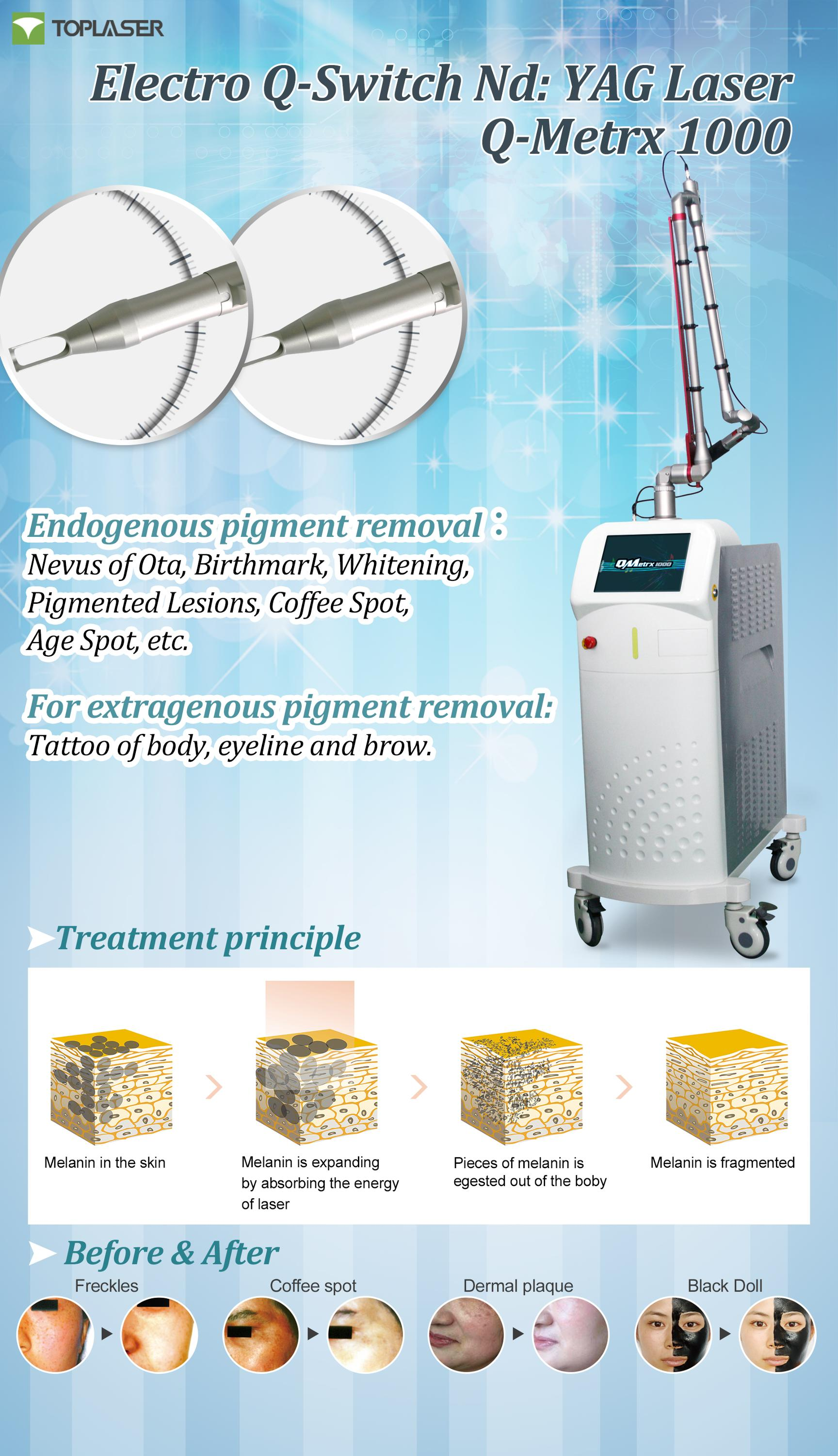 Newest Medial Device Nd Yag Laser