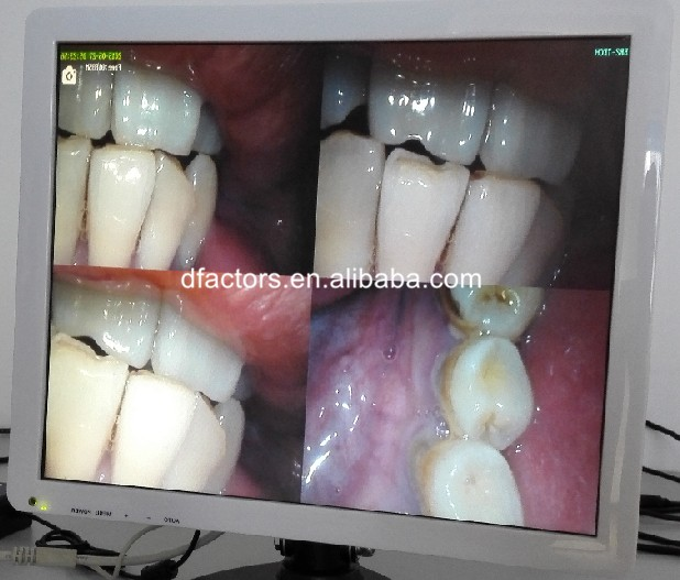 New vDental  Intraoral Camera with monitor screen intra oral camera with Holder dental camera intraoral