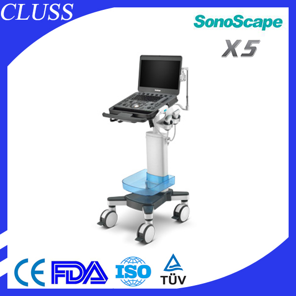 Low price Sonoscape X5 laptop used ultrasound machine color doppler