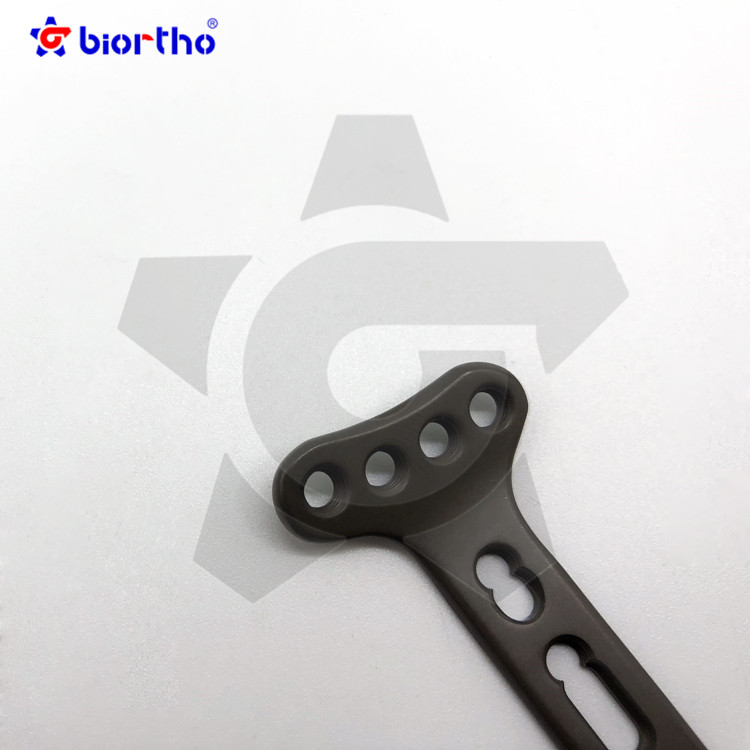 Distal Radius  Locking Plate  Orthopedic trauma  Instruments