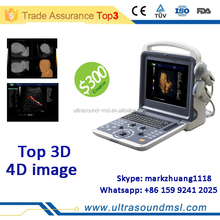MSLCU28Z Factory exclusive laptop fetal doppler ultrasound with 3D & 4D software