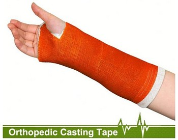 Fracture Treatment Orthopedic Fiberglass Casting Tape External Fixation Bandage