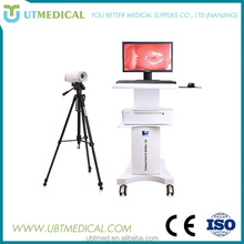 Trolley Digital Camera Vaginoscope Colposcope & Video Colposcope for Sale