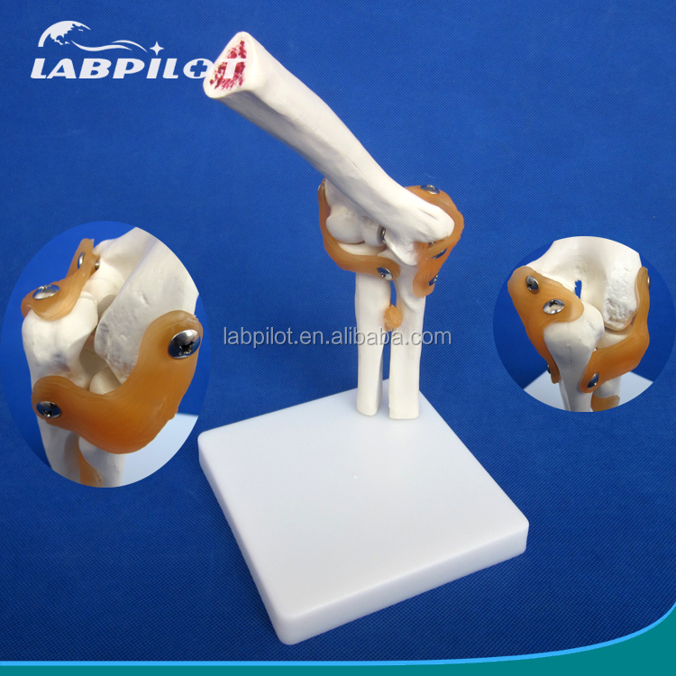 Bendable Human Elbow Model, Elbow Bone Model