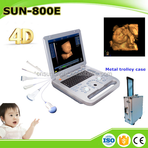 Top quality 3D/4D pregnancy pc-based laptop portable ultrasound scanner/ diagnostic ultrasound machine with video port