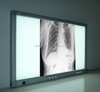 LED Film Viewer/aluminum x ray film viewer