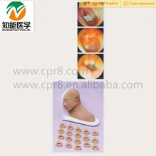 medical training inspection ear model
