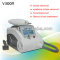 Tattoo Removal q switched yag laser Machine