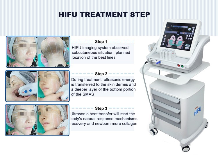 HIFU Beauty Machine/beauty salon equipment/beauty equipment