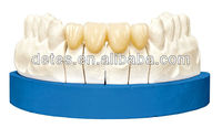 2013 hot alloy porcelain denture /Titanium Porcelain dental stainless steel crown