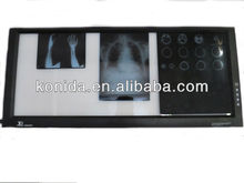 LED Light Adjustable X Ray Film Viewer