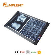 China top sale super slim LED x ray film illuminator, x-ray film viewer