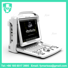 FY-ECO3 EXPERT VET Portable Ultrasound Handheld In United States Guided Regional