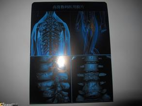 New Medical x-ray blue film thermal dry film for medical device