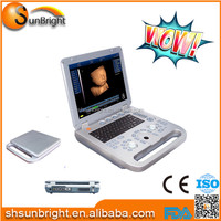 3D 4D laptop ultrasound machine & ultrasonic machine for cardiology