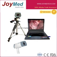 HD camera digital video colposcope/laptop portable vaginal endoscope
