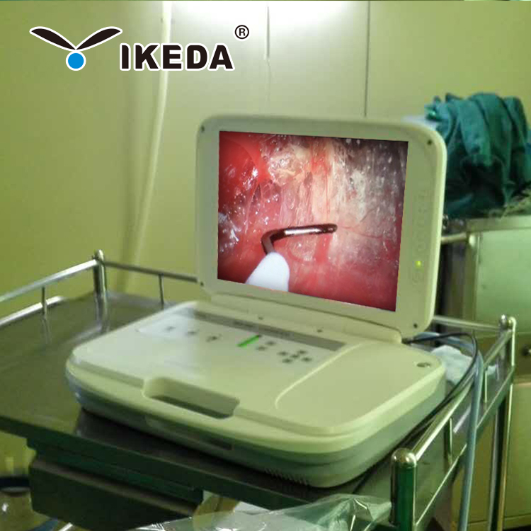 Medical LED light source portable hd endoscopy equipment with video recorder