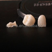 First dental material supplier in China to promote glass ceramic
