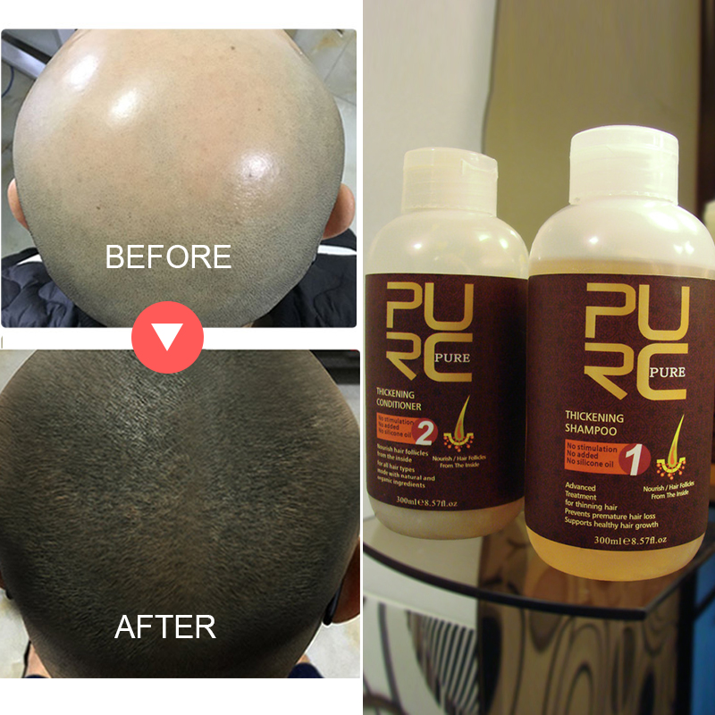 Best hair shampoo repair genetic hair loss problem best choose natural ginger hair thickening shampoo