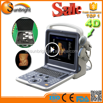 Most Affordable portable 3d 4d color doppler ultrasound scanner Sun-900E