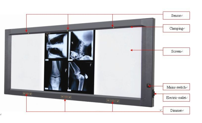 LED X ray medical film viewer with film sensor Jinde JD 01AIII Single one bank film viewer
