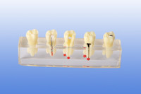 Root canal therapy display model