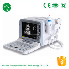 Portable Ultrasonic Diagnostic Devices Type ultrasound USG machine/laptop ultrasound scanner/echo ultrasound