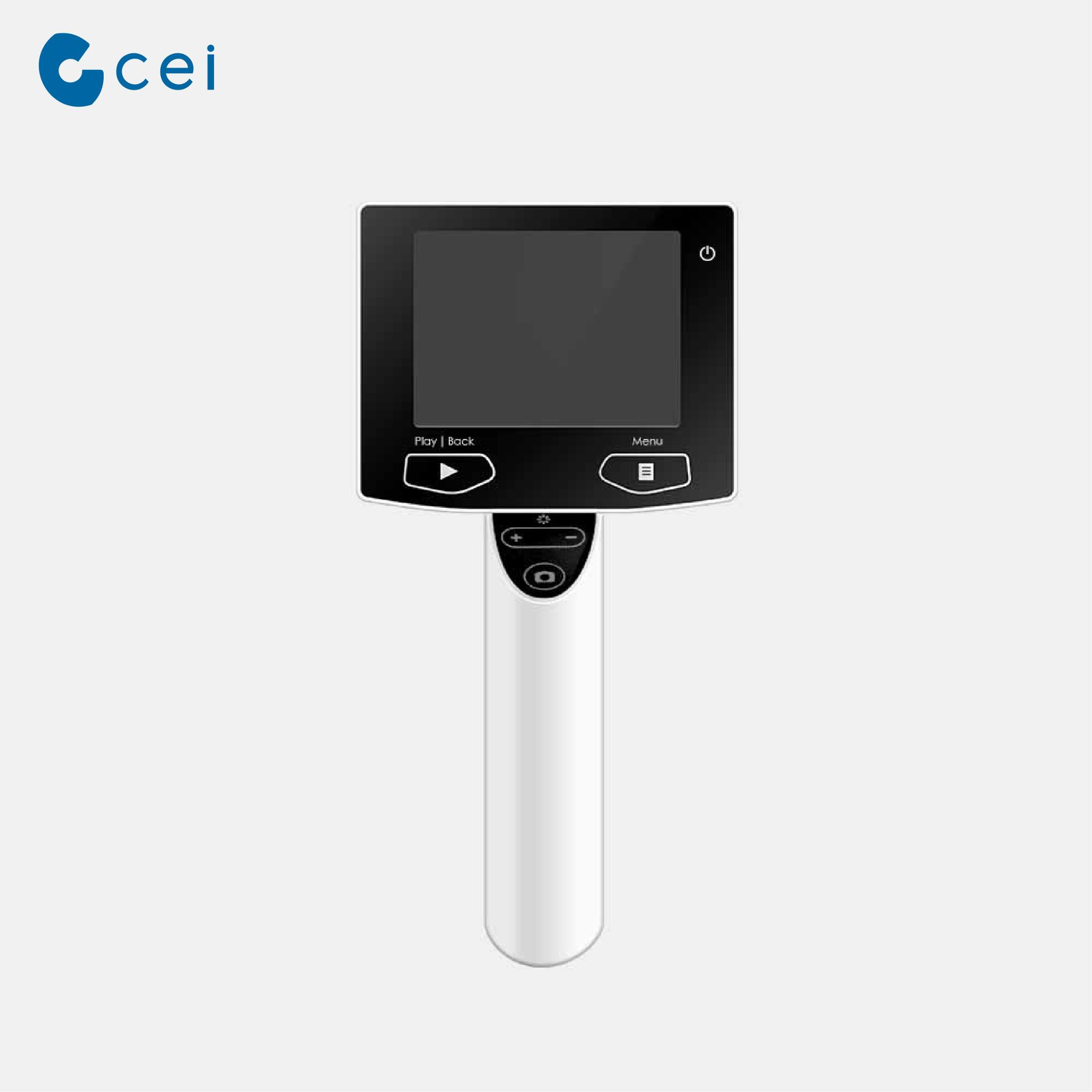 2018 ENT Major High Resolution Digital Otoscope Surgical Instrument