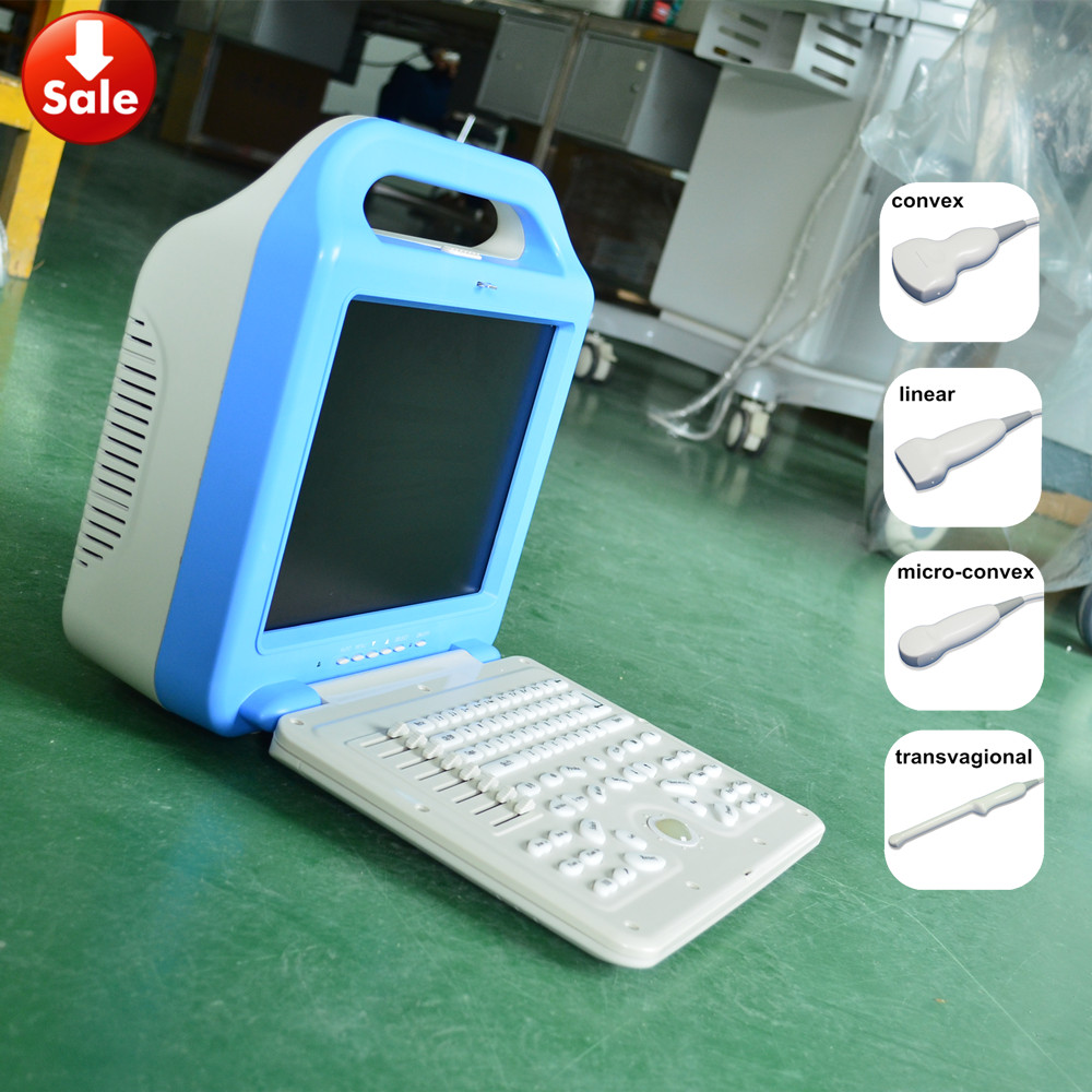 high quality ultrasound ATNL/51353A b mode ultrasound scanner