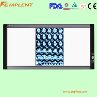 super slim LED x-ray film viewer with white color for frame