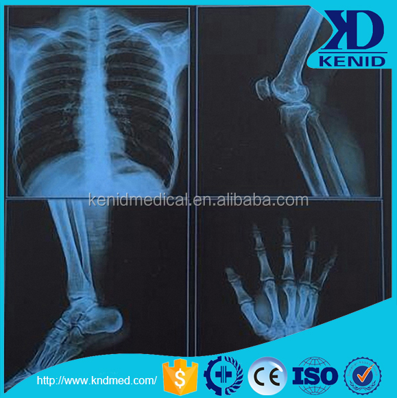 CT scan image accessories /x-ray/MRI/CT imaging sheet