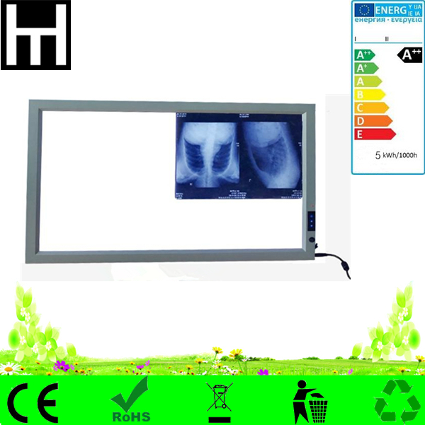 smooth Brightness Control auto-sensing slim LED hospital x-ray illuminator