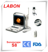 Sonoscape S8 portable color ultrasound doppler system,3d 4d ultrasound machine