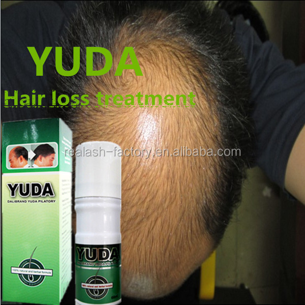 OEM YUDA fast work hair regain pilatory for man