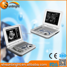 Pregnancy baby checking clear images laptop small ultrasound