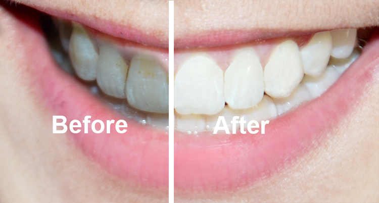 Organic coconut charcoal teeth whitening powder reviews