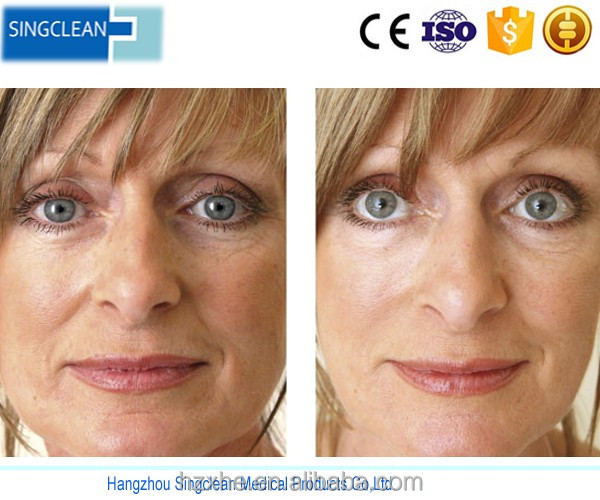 Singfiller injectable cheap Cost of Under Eye Fillers With safe quality