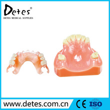 Best denture teeth in China Soft acrylic false teeth