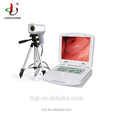 Gynecological Digital Electronic video colposcope for vagina