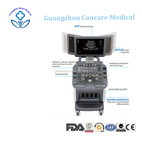 best doppler ultrasound scan machine price