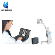 BT-XS07 Digital Wireless control Mobile medical x-ray machine prices