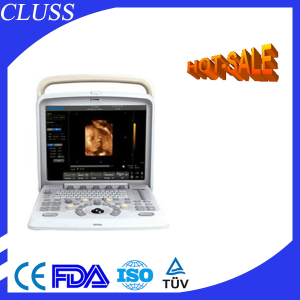 2 USB ports long warranty laptop color doppler ultrasound scanner