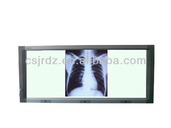 good price Medical LED slim negatoscope