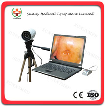 SY-F003 hot sale Electronic portable Colposcope camera for sale