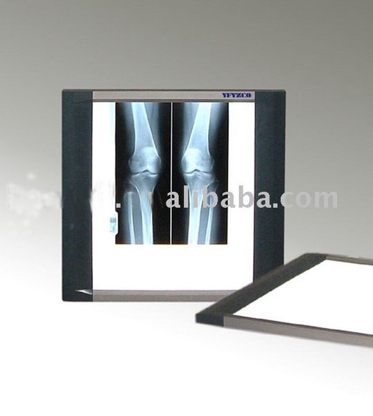 High Quality Led X-ray Film Viewer