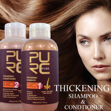 Not need medication for hair loss case in men best choosing for thickening hair products