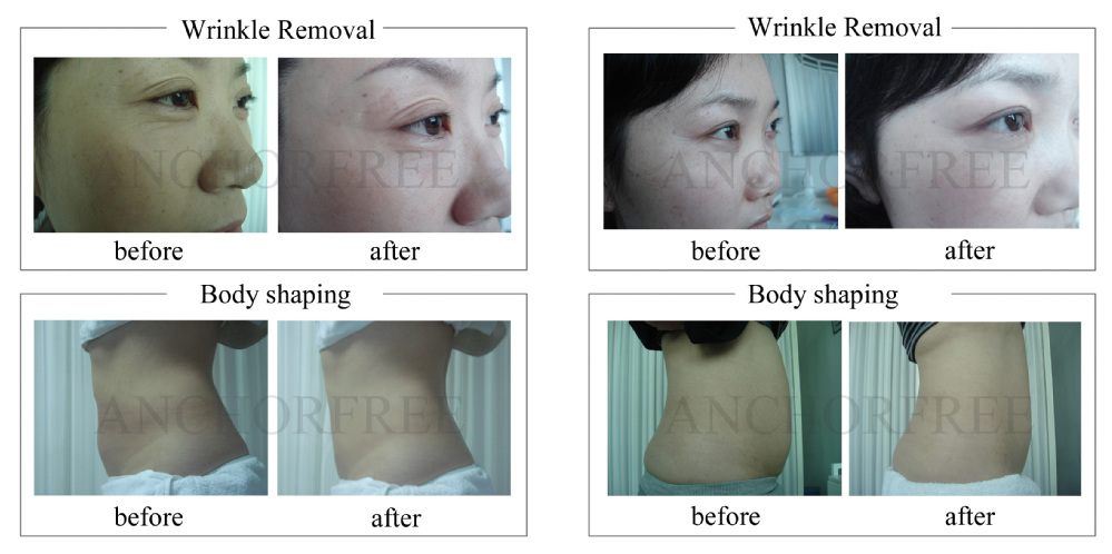 Vacuum Slimming Machine RF Laser Eye Bag Removal (Vmini)
