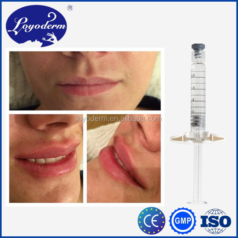 2016 hot selling hyaluronate acid derm filler for wrinkle removal lip fullness nasolabial folds fitting nose up hip enlargment