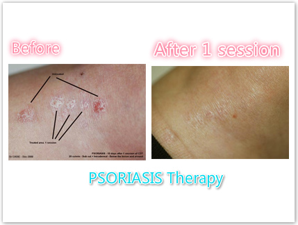 carboxytherapy 2016 기계, carboxtherapy 장비